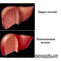 Ciroză alcoolică: simptome, dieta, tratament, prognostic