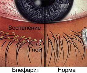 blefarită