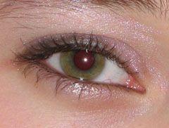 simptome de blefarită
