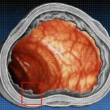 etiologia bolii Crohn și patogeneza