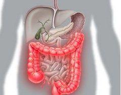 Cauzele bolii Crohn