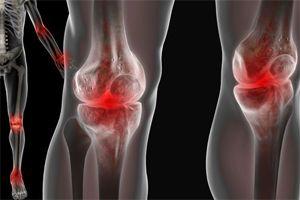 artropatia