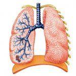 Factori de risc bronșiectazie
