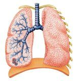 Cauzele bronșiectazie și tratament