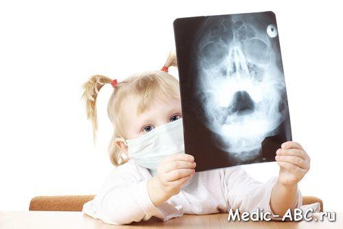 Než léčit zánět vedlejších nosních dutin u dětí