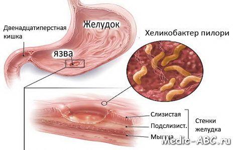 Než při léčbě Helicobacter pylori