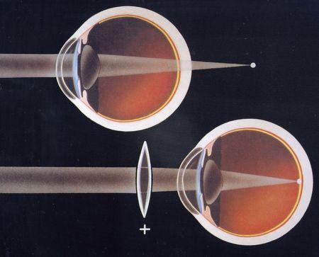 Какво е далекогледство леки до умерени око