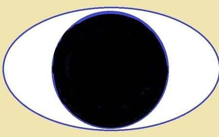 Какво е aniridia око и нейното лечение