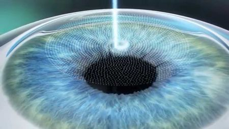 Какво е ексимерна корекция на лазерно зрение