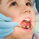Бебешки млечен зъб кариес