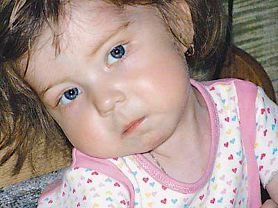 Fata din Rusia la inima transplantată Italia