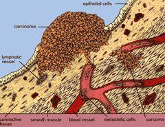 feokromocitoma