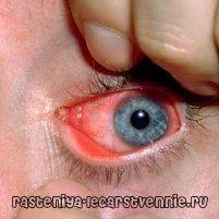 Chlamydia: simptome, tratament, cauze, prevenire