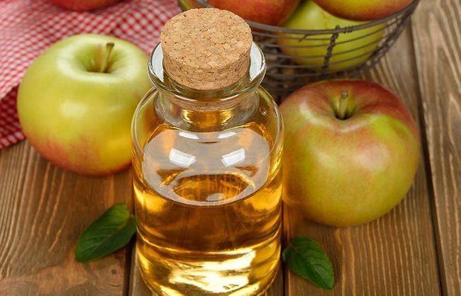 Ябълковият оцет за разширени крака: народни лекове и отзиви за тях
