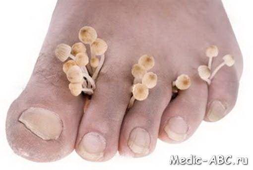 Как да се отървете от гъбичките на краката си