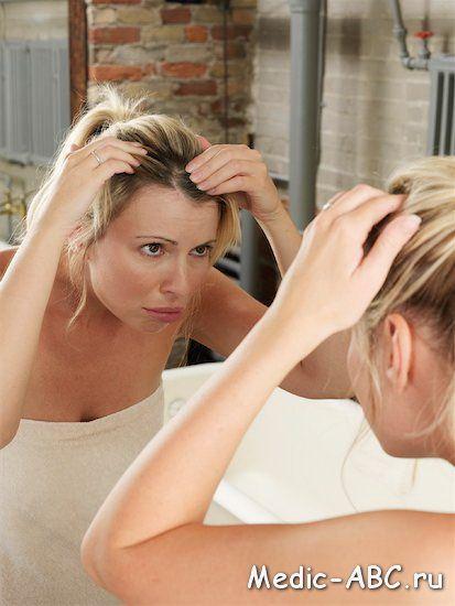 Как да се отървем от себореен дерматит