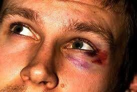 Cum sa scapi de vânătăi sub ochii lui de a fi lovit rapid și eficient? fotografie