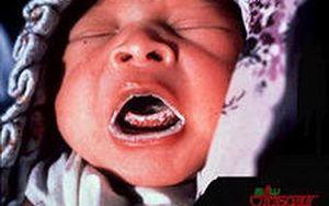 Как за лечение на гъбична инфекция в устата на деца
