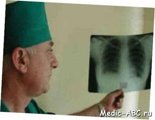 Jak se k léčbě tuberkulózy