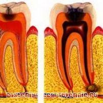 Вадење на заб болка? Да се ослободи од бременоста дома? За народни методи