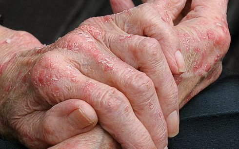 Jak vyléčit ekzém na rukou