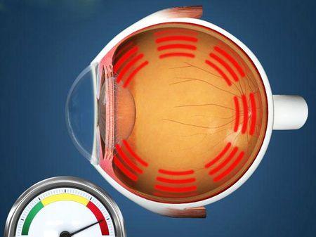 Која е стапката на очниот притисок е нормално кај луѓето