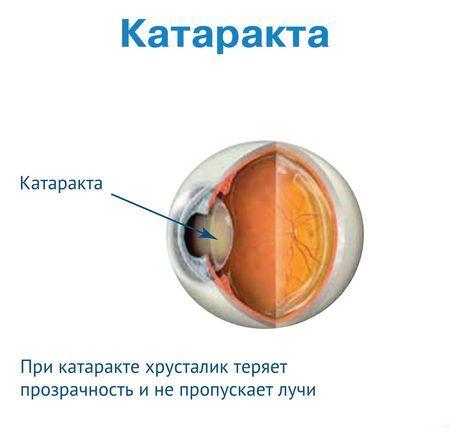 Што е подобро да се избере леќи за катаракта