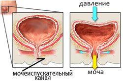 Што лекови од уринарна инконтиненција за жените?