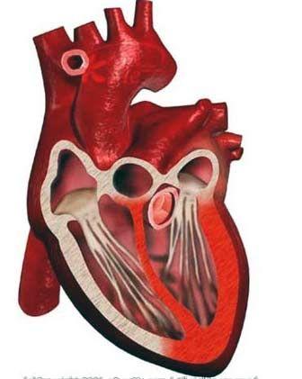 un fel de miocardita