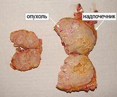 tumora glandei suprarenale