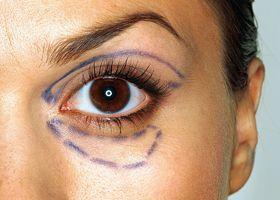 ptoza tratament facial