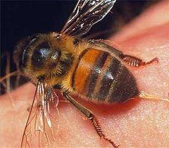 První pomoc na včelí bodnutí