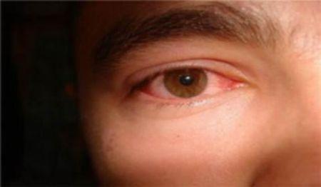 Зошто возрасни очи се секогаш црвена