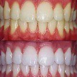 Indikace a kontraindikace pro bělení zubů