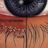 Cauzele și soiuri de blefarita