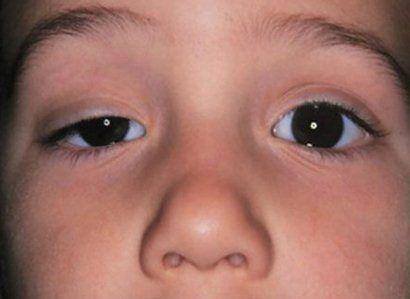 Simptomele de ptoza pleoapei superioare
