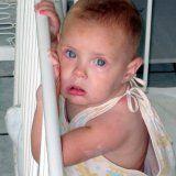 Simptomele meningitei seroase la copii