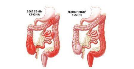 colita ulcerativă și boala Crohn