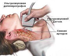 Examinarea cu ultrasunete a arterei carotide