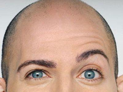 Vrste plešavosti (alopecija)