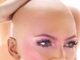 Alopecija. izpadanje las