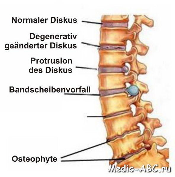 Druhy osteoartrózy a jak ji léčit