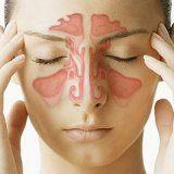 complicații intracraniene ale infecției rhinogenous