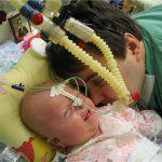 Dezvoltarea pulmonare congenitale