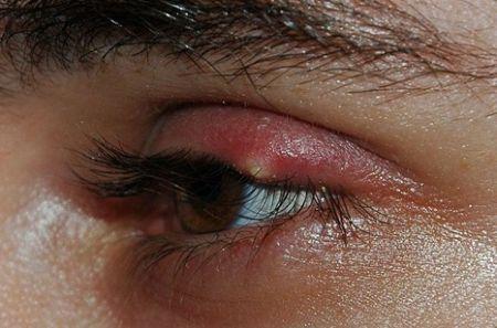 Белата скокна pimple во окото