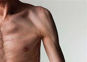 Slabost svalů v seniora