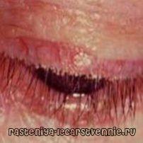 boala de ochi Blefarita